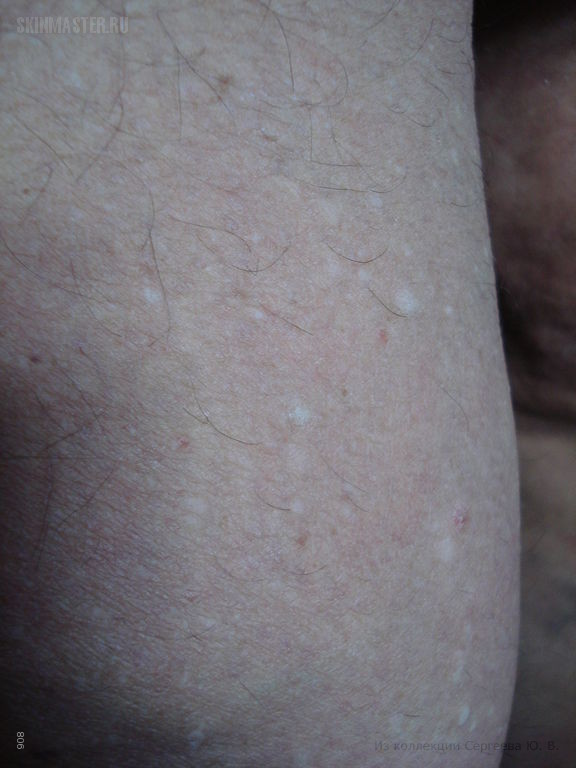 Stucco keratosis | Primary Care Dermatology Society | UK