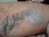 Штукатурный кератоз (stucco keratosis) и псориаз. №910