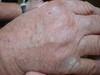 Штукатурный кератоз (stucco keratosis) и псориаз. №911