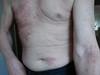 Дерматит аллергический. Клинические фото #914