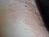 Отрубевидный лишай и себорейный дерматит. №922