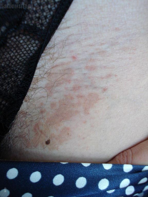 Отрубевидный лишай и себорейный дерматит