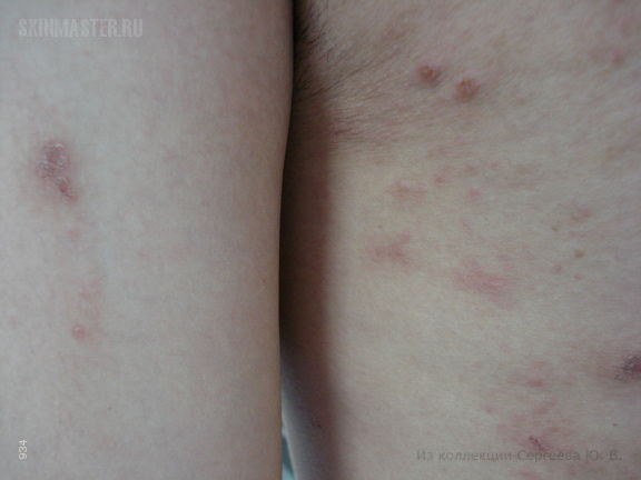 Нуммулярная экзема у пациента с вирусным гепатитом В