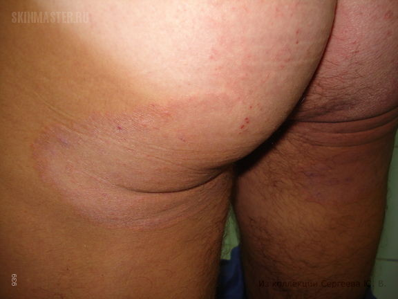 Распространенная руброфития гладкой кожи и крупных складок, онихомикоз кистей