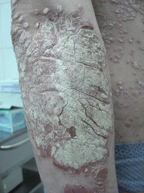 Хронический бляшечный псориаз