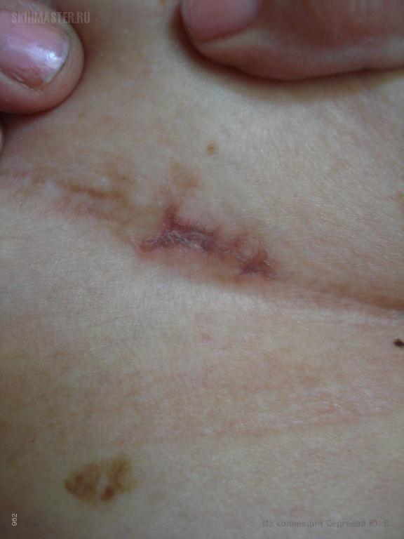 Красный плоский лишай (кольцевидная форма) и гепатит В