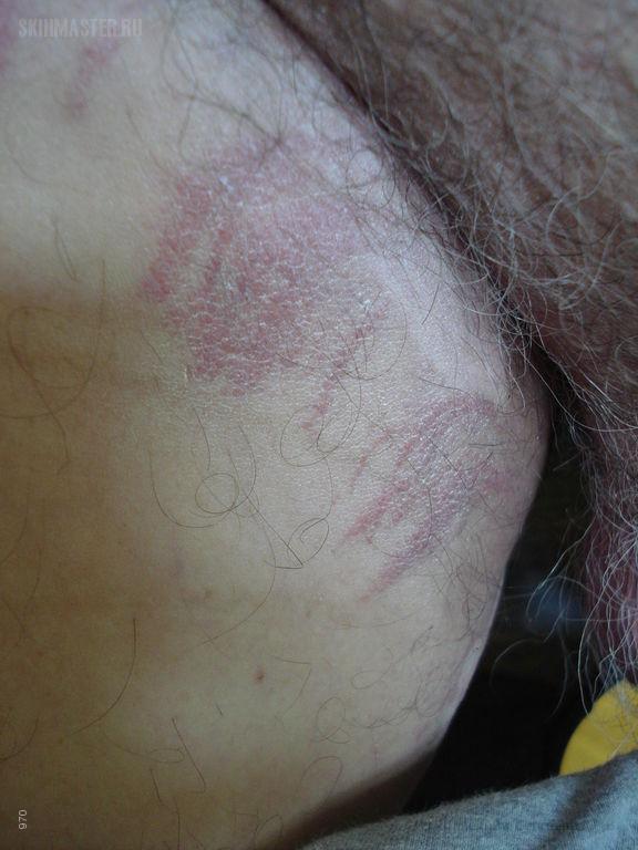 Аллергический контактный дерматит и витилиго