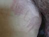 Дерматит аллергический. Клинические фото #970