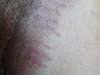 Дерматит аллергический. Клинические фото #971