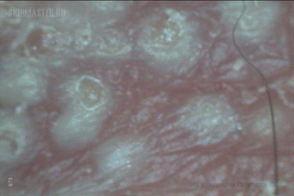 Рецидивирующий герпес пояснично-крестцовой области и закрученные вросшие волосы.