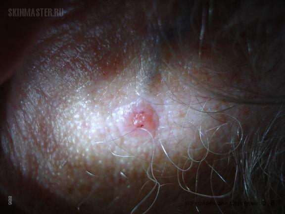 Первично-множественные базалиомы на лице и спине