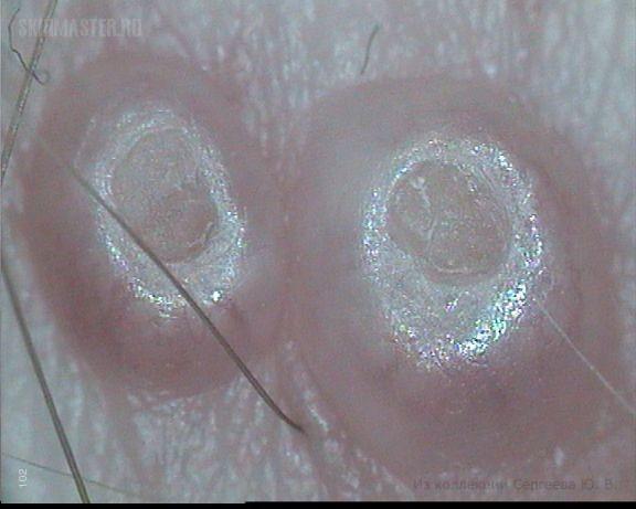 Моллюски контагиозные, распространенные, воспалившиеся на фоне диссеминированных фолликулитов