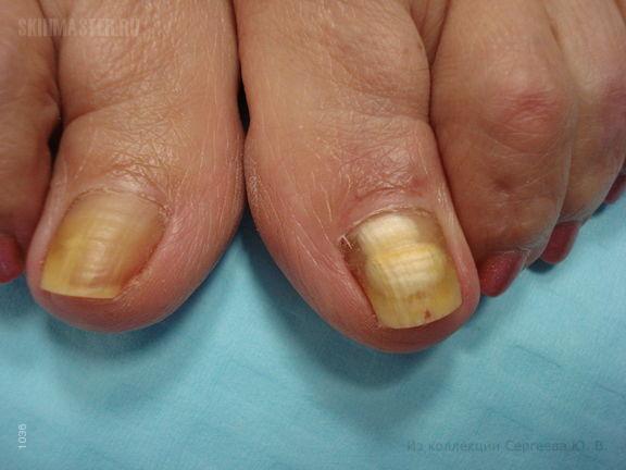 Белый подногтевой онихомикоз и гепатит Д
