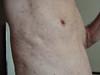 Токсикодермия. Клинические фото #1052