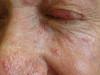 Розацеа. Клинические фото #1103