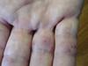 Тромбидиаз. Клинические фото #1120