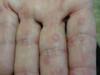Тромбидиаз. Клинические фото #1122