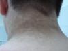 Акантоз черный. Клинические фото #1153