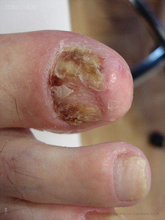 Пустулезный ладонно-подошвенный псориаз с поражением ногтей