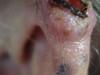 Базалиома. Клинические фото #1167