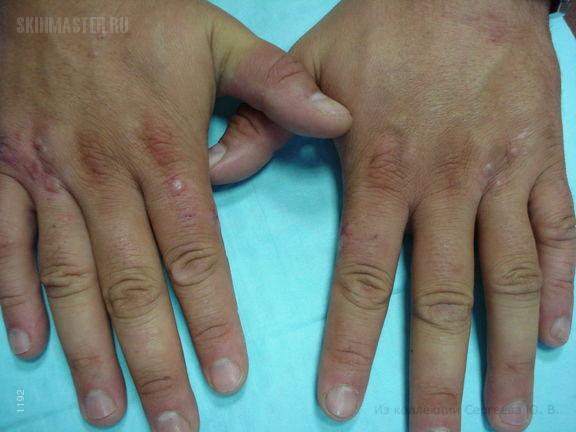 Перфорирующая кольцевидная гранулема