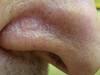 Базалиома. Клинические фото #1195