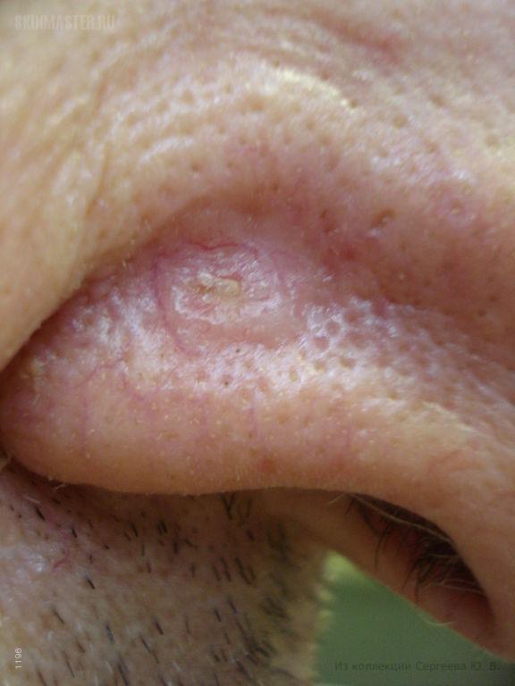 Базалиома крыла носа