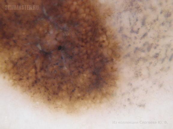 Спонтанно регрессирующая форма меланомы