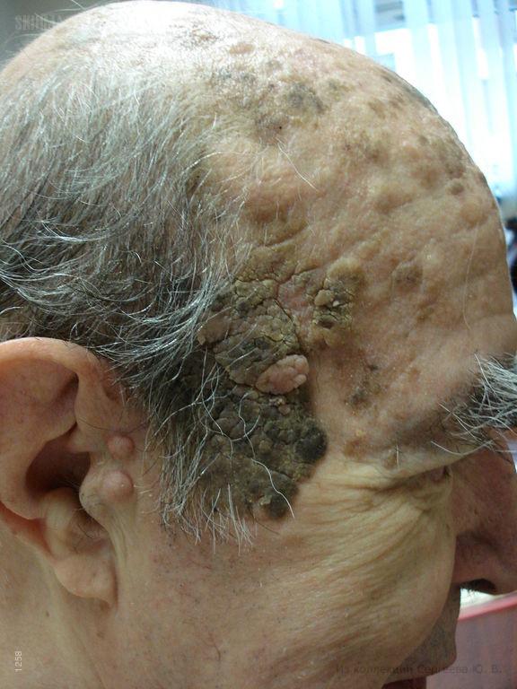 Хористома и себорейный кератоз