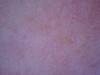 Дерматит себорейный. Видеодерматоскопия #1285