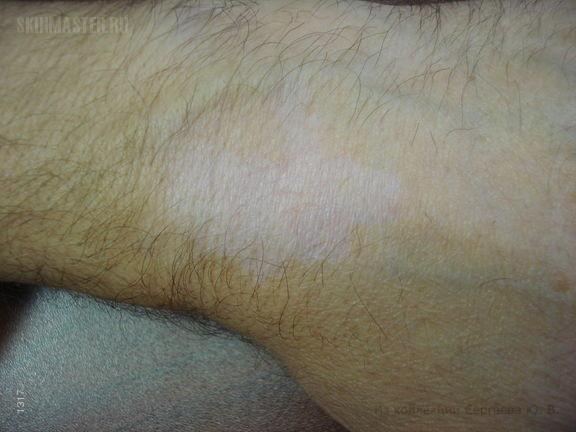 Гипопигментация кожи у больного псориазом, индуцированная кортикостероидами