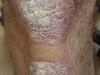 Псориаз. Клинические фото #1320