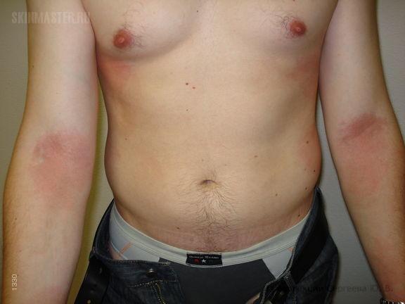 Токсикодермия у пациента с атопической аллергией