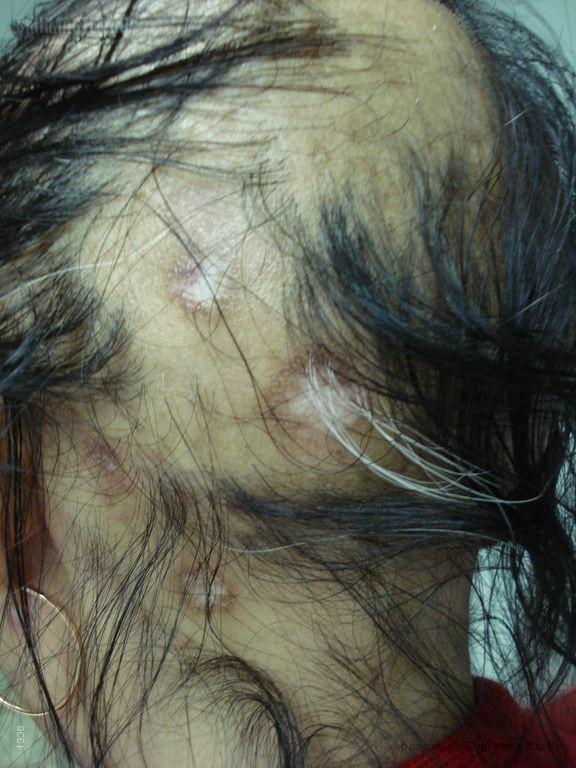 Синдром хронической усталости и узловатая почесуха Гайда
