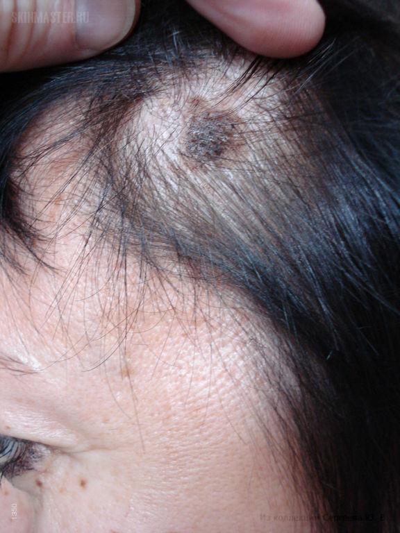 Себорейная кератома и атипичные невусы