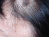 Кератома себорейная. Клинические фото #1350