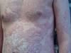 Псориаз. Клинические фото #1382