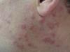 Инфильтрация лимфоцитарная. Клинические фото #1403