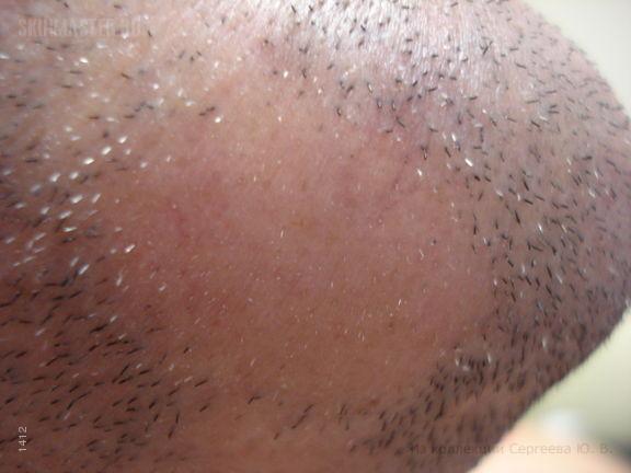 Гнездная алопеция бороды и псориаз