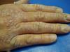 Алопеция гнездная. Клинические фото #1414