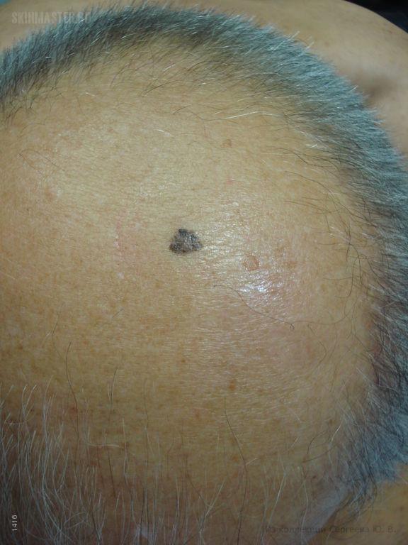 Поверхностно-распространяющаяся меланома и базалиомы