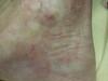 Склеродермия. Клинические фото #1460