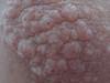Дерматит шистосомный. Клинические фото #1512