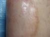 Некробиоз липоидный. Клинические фото #1547
