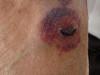 Герпетиформный дерматит Дюринга и геморрагические осложнения кортикостероидной терапии. №1551