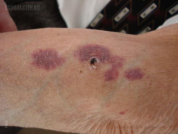 Герпетиформный дерматит Дюринга и геморрагические осложнения кортикостероидной терапии