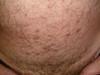 Постскабиозная лимфоплазия. №1564