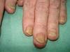 Болезнь Аддисона и дерматофития, как осложнение перманентной кортикостероидной терапии. №1583