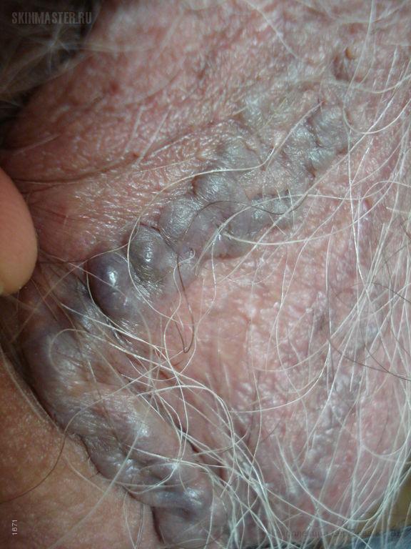 Варикозная болезнь: варикозное расширение вен кожи мошонки, голеней и «венозное озерцо» волосистой части головы