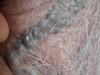 Варикозная болезнь: варикозное расширение вен кожи мошонки, голеней и «венозное озерцо» волосистой.... №1671